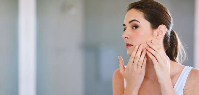 acne and acne scars management